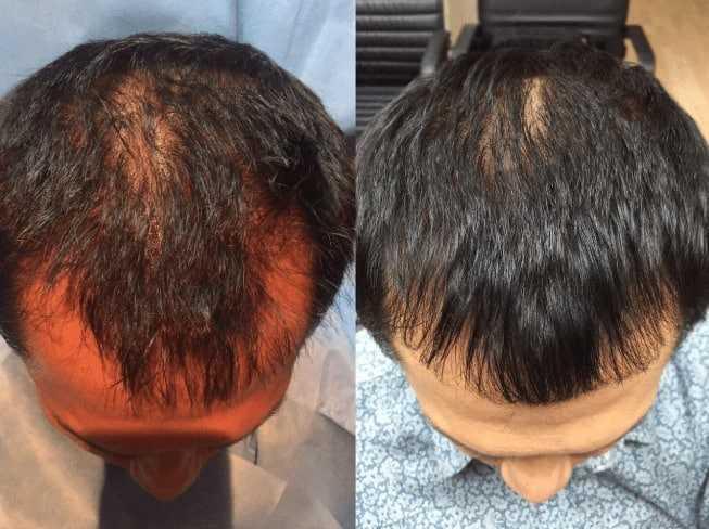 Rigenera Activa hair loss treatment